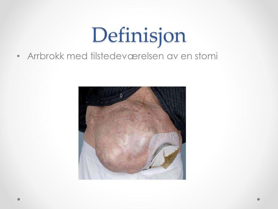 Definisjon Arrbrokk med tilstedeværelsen av en stomi