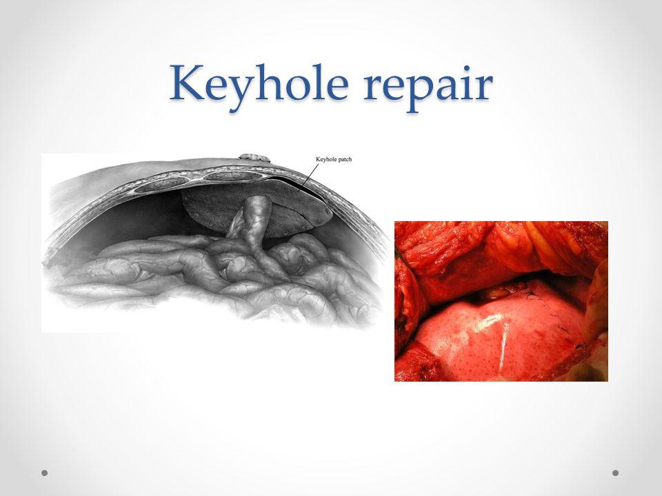Keyhole repair