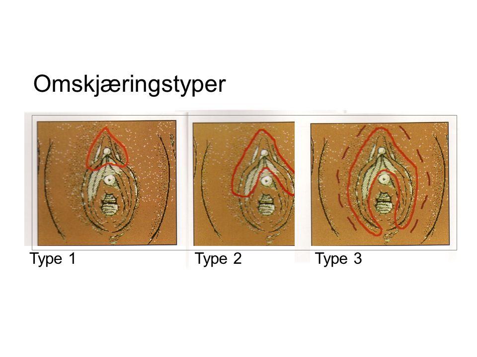 Omskjæringstyper Type 1Type 2Type 3