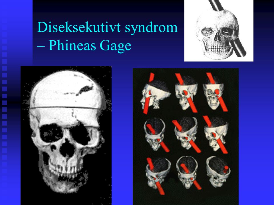 Diseksekutivt syndrom – Phineas Gage
