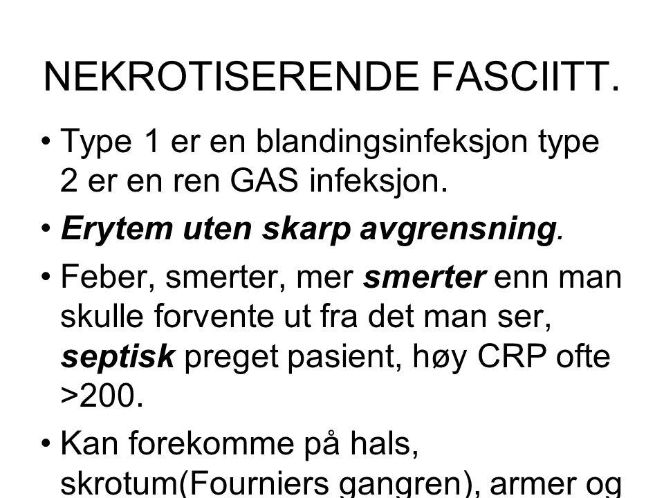 NEKROTISERENDE FASCIITT. Type 1 er en blandingsinfeksjon type 2 er en ren GAS infeksjon. Erytem uten skarp avgrensning. Feber, smerter, mer smerter en