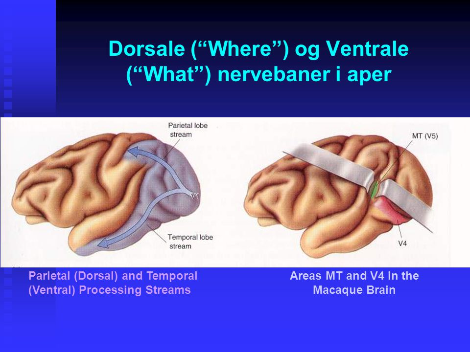 Dorsale ( Where ) og Ventrale ( What ) nervebaner i aper Parietal (Dorsal) and Temporal (Ventral) Processing Streams Areas MT and V4 in the Macaque Brain