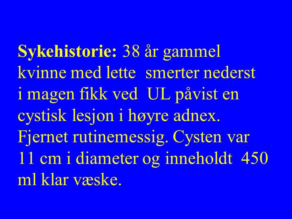 Sykehistorie: 38 år gammel kvinne med lette smerter nederst i magen fikk ved UL påvist en cystisk lesjon i høyre adnex. Fjernet rutinemessig. Cysten v