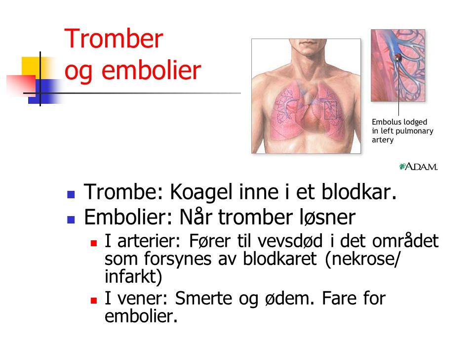 Tromber og embolier Trombe: Koagel inne i et blodkar. Embolier: Når tromber løsner I arterier: Fører til vevsdød i det området som forsynes av blodkar