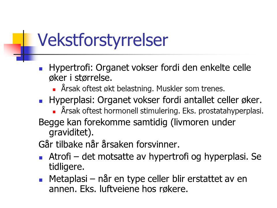 Vekstforstyrrelser Hypertrofi: Organet vokser fordi den enkelte celle øker i størrelse.