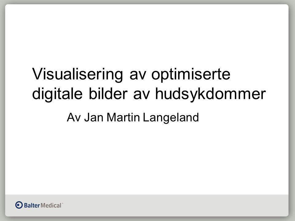 Visualisering av optimiserte digitale bilder av hudsykdommer Av Jan Martin Langeland