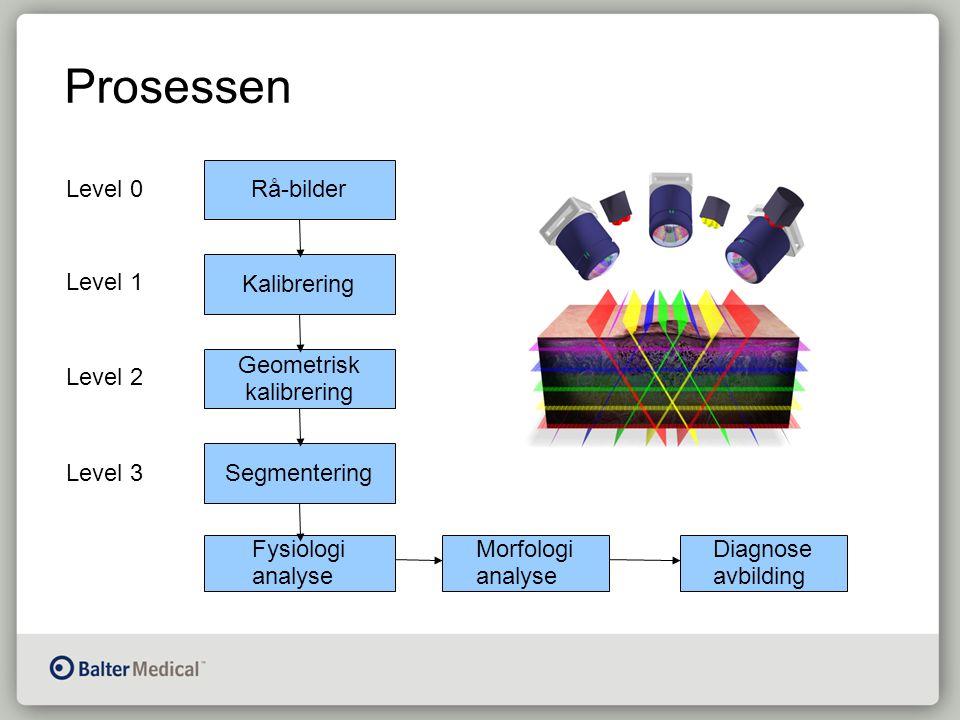 Prosessen Rå-bilder Kalibrering Geometrisk kalibrering Segmentering Fysiologi analyse Morfologi analyse Diagnose avbilding Level 0 Level 1 Level 2 Level 3