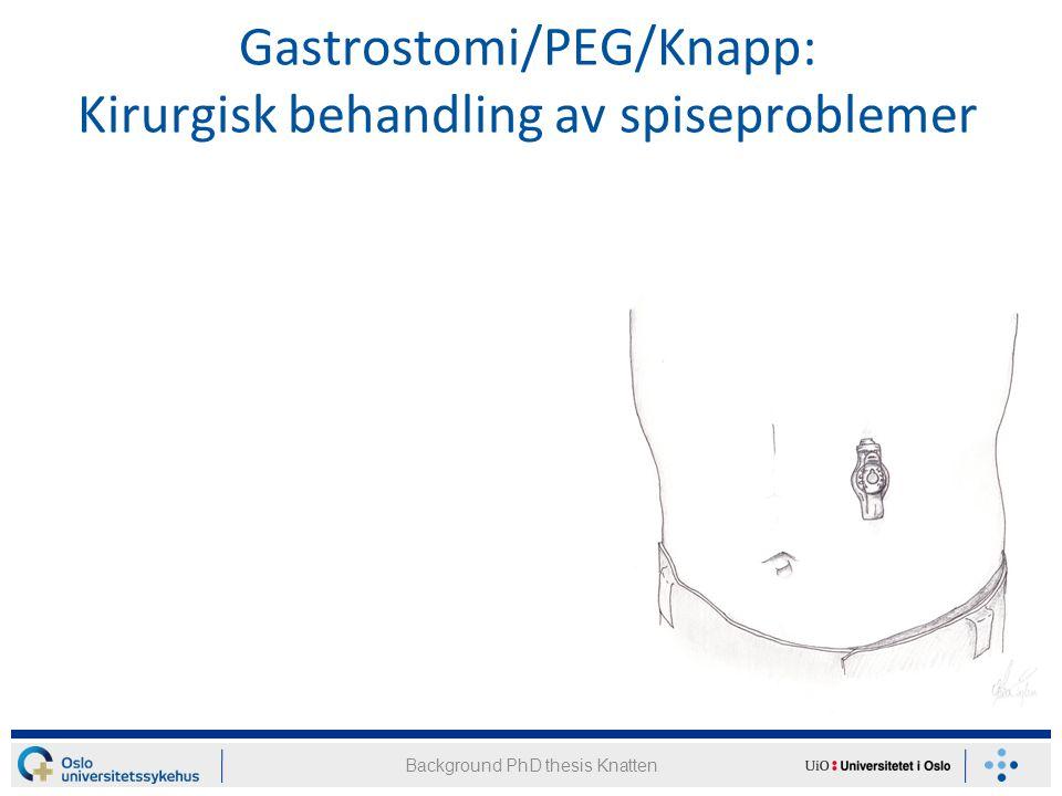 Resultater etter Nissen fundoplikasjon Study II: Results after Nissen fundoplication