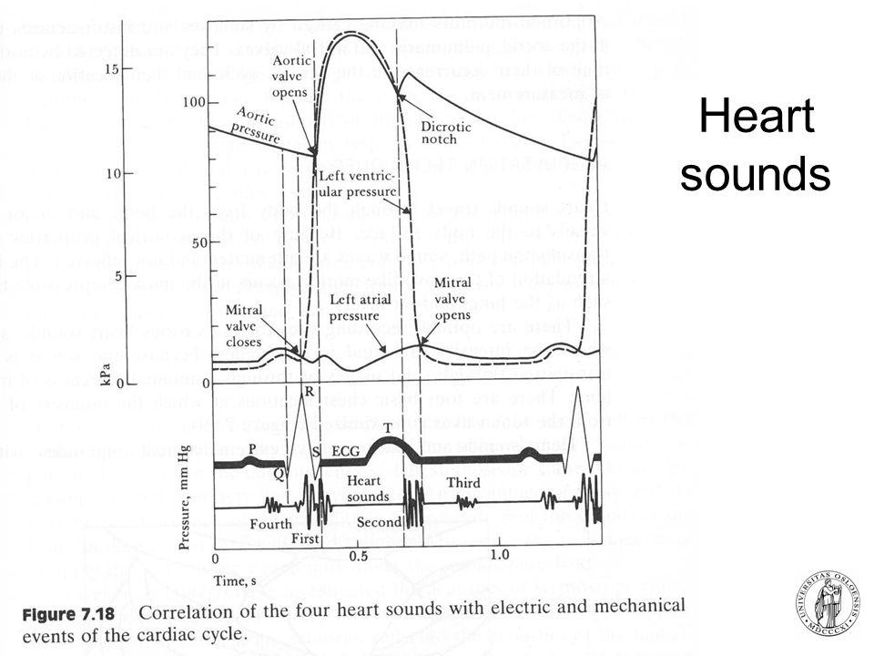 Fysisk institutt - Rikshospitalet 16 Heart sounds