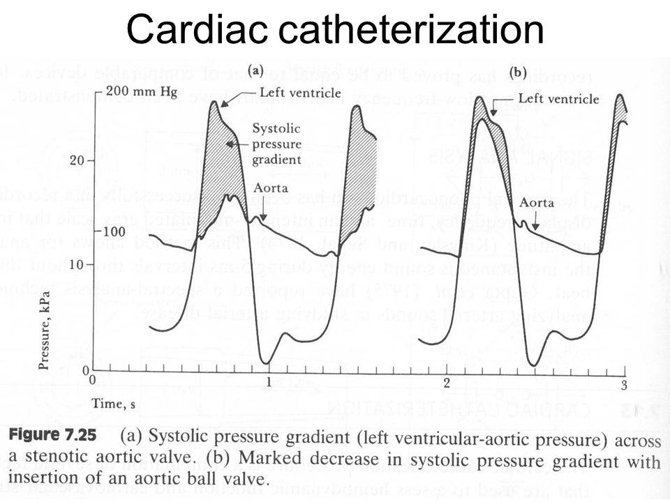 Fysisk institutt - Rikshospitalet 19 Cardiac catheterization