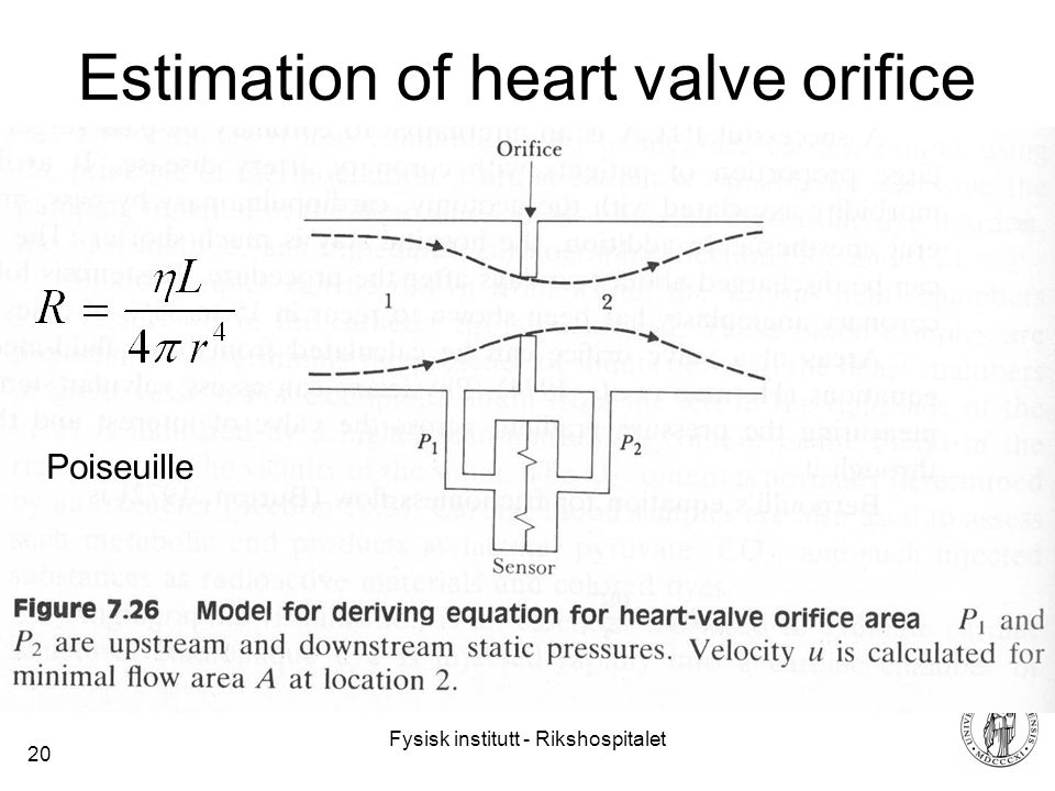 Fysisk institutt - Rikshospitalet 20 Estimation of heart valve orifice Poiseuille