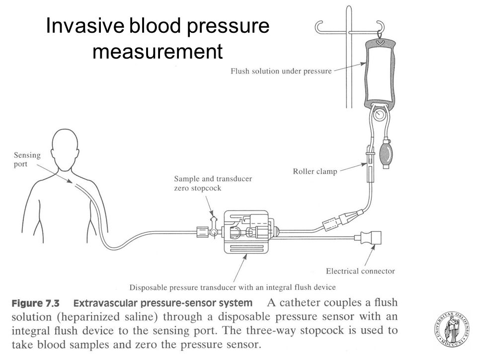 Fysisk institutt - Rikshospitalet 4 Invasive blood pressure measurement