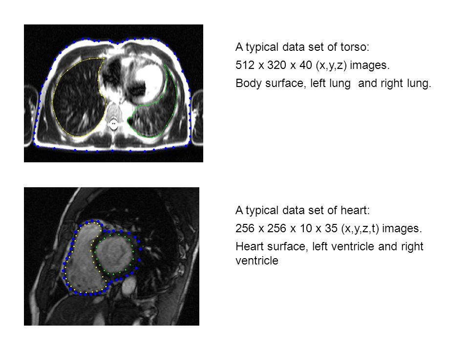 A typical data set of torso: 512 x 320 x 40 (x,y,z) images. Body surface, left lung and right lung. A typical data set of heart: 256 x 256 x 10 x 35 (