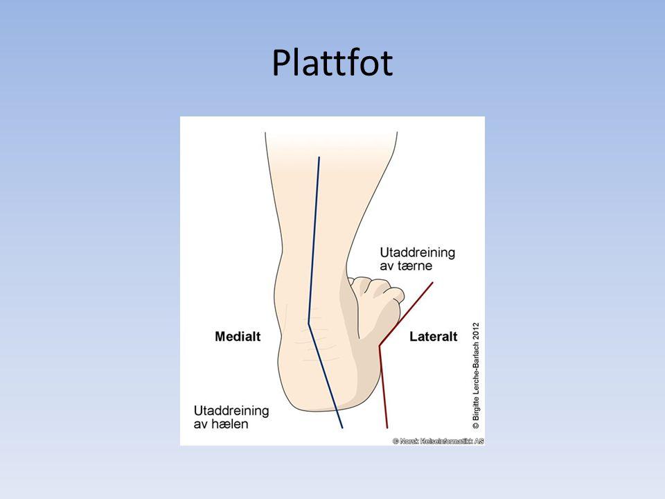 Plattfot