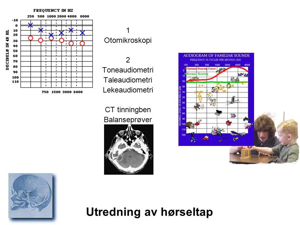 Utredning av hørseltap 1 Otomikroskopi 2 Toneaudiometri Taleaudiometri Lekeaudiometri CT tinningben Balanseprøver
