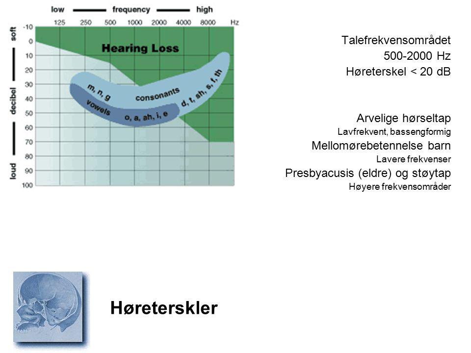 Høreterskler Talefrekvensområdet 500-2000 Hz Høreterskel < 20 dB Arvelige hørseltap Lavfrekvent, bassengformig Mellomørebetennelse barn Lavere frekven