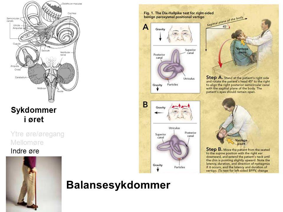 Balansesykdommer Sykdommer i øret Ytre øre/øregang Mellomøre Indre øre