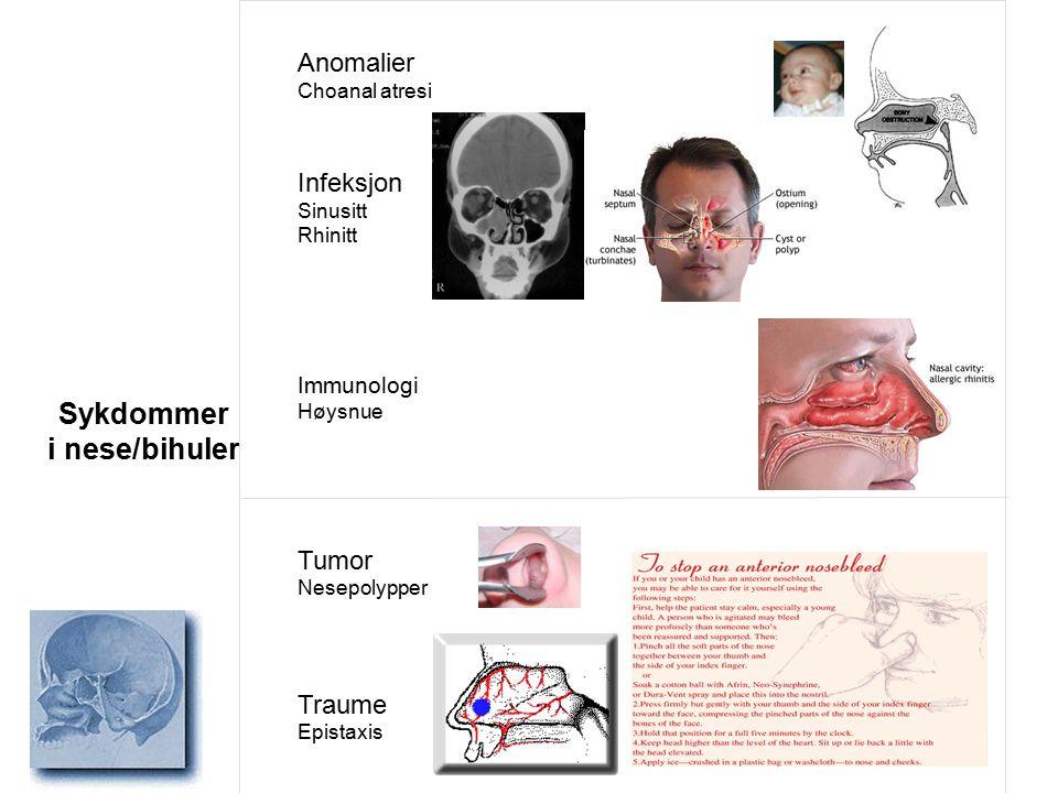 Anomalier Choanal atresi Infeksjon Sinusitt Rhinitt Immunologi Høysnue Tumor Nesepolypper Traume Epistaxis Sykdommer i nese/bihuler