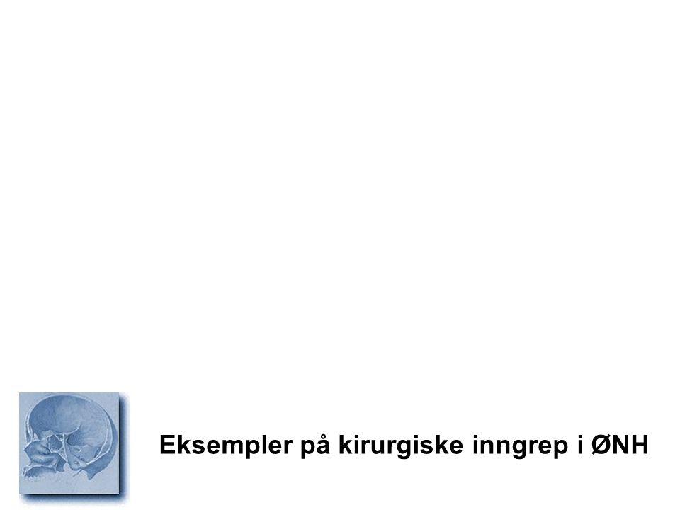 Eksempler på kirurgiske inngrep i ØNH