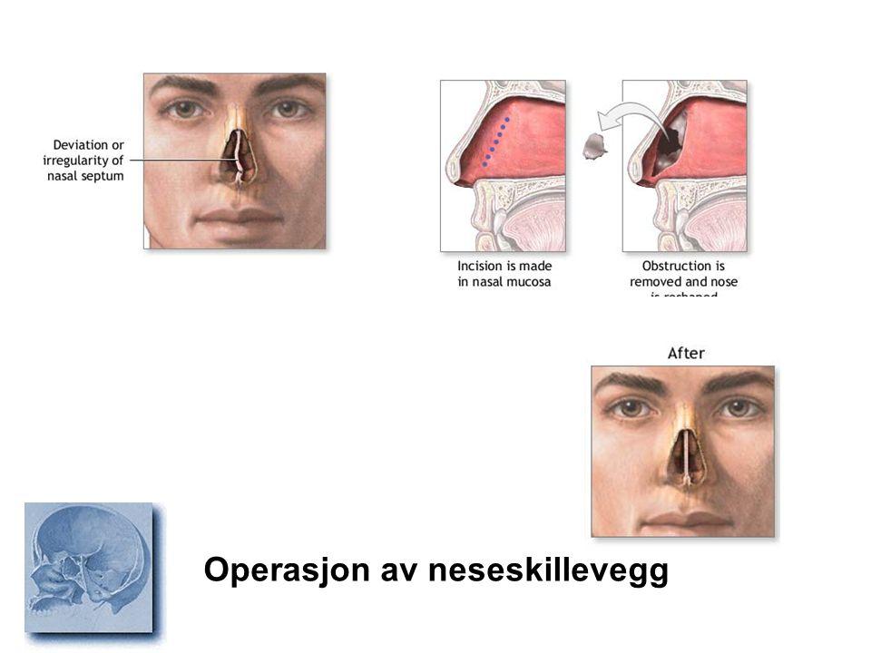 Operasjon av neseskillevegg