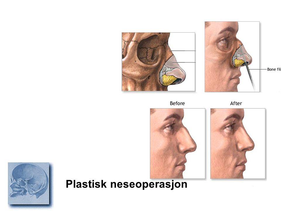 Plastisk neseoperasjon