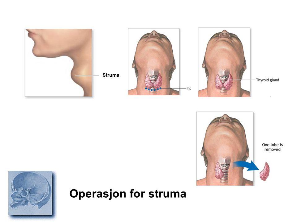 Struma Operasjon for struma