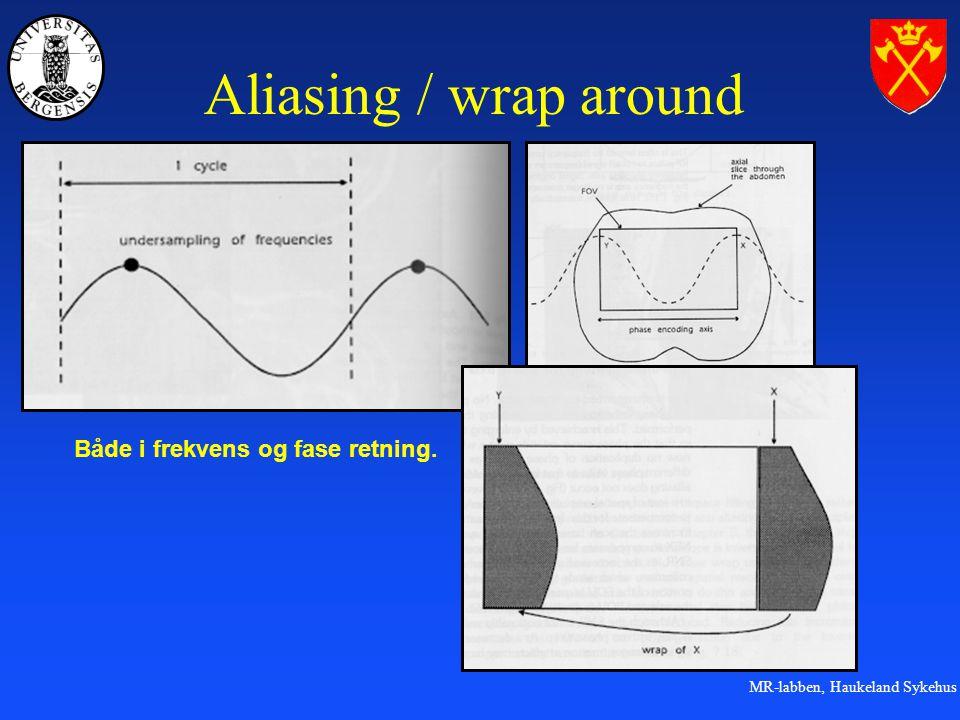 MR-labben, Haukeland Sykehus Aliasing / wrap around Både i frekvens og fase retning.