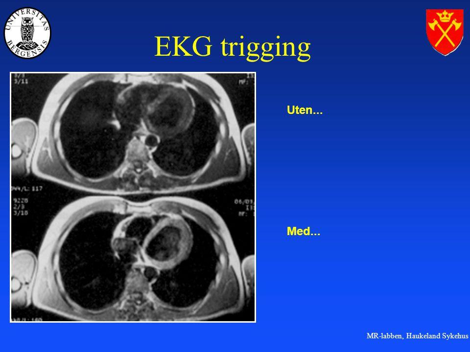 MR-labben, Haukeland Sykehus EKG trigging Uten... Med...