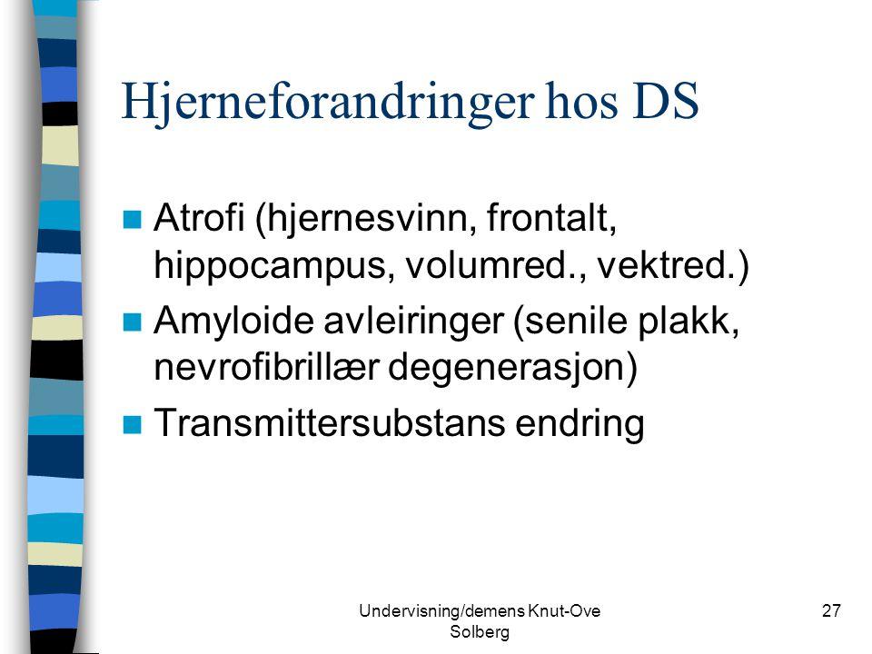 Undervisning/demens Knut-Ove Solberg 27 Hjerneforandringer hos DS Atrofi (hjernesvinn, frontalt, hippocampus, volumred., vektred.) Amyloide avleiringe