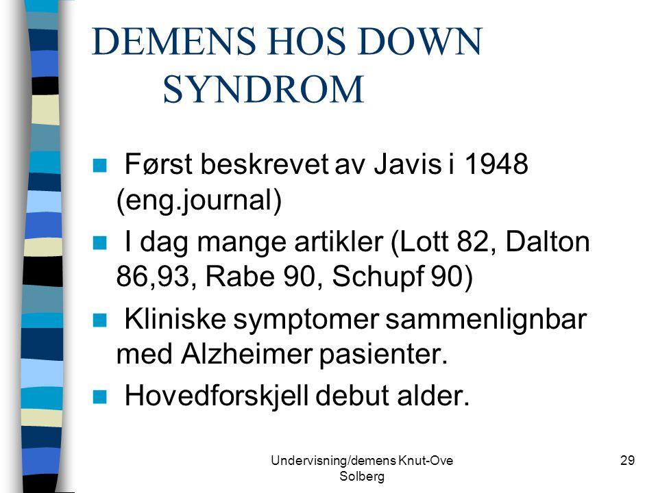 Undervisning/demens Knut-Ove Solberg 29 DEMENS HOS DOWN SYNDROM Først beskrevet av Javis i 1948 (eng.journal) I dag mange artikler (Lott 82, Dalton 86