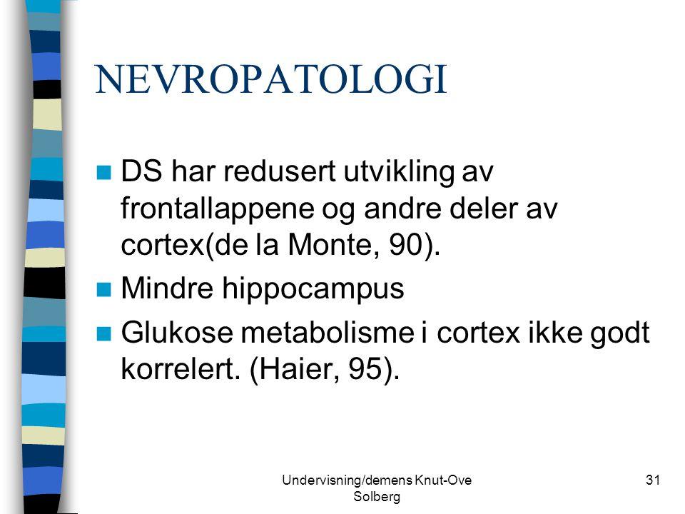 Undervisning/demens Knut-Ove Solberg 31 NEVROPATOLOGI DS har redusert utvikling av frontallappene og andre deler av cortex(de la Monte, 90). Mindre hi