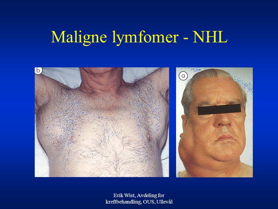 Erik Wist, Avdeling for kreftbehandling, OUS, Ullevål Maligne lymfomer - NHL