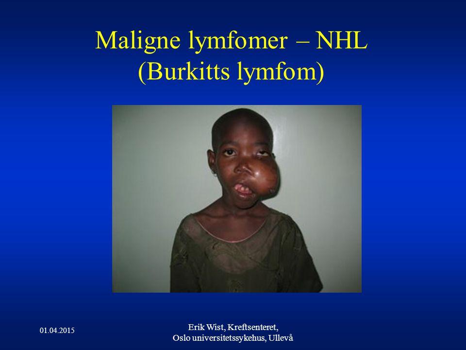 01.04.2015 Erik Wist, Kreftsenteret, Oslo universitetssykehus, Ullevå Maligne lymfomer – NHL (Burkitts lymfom)