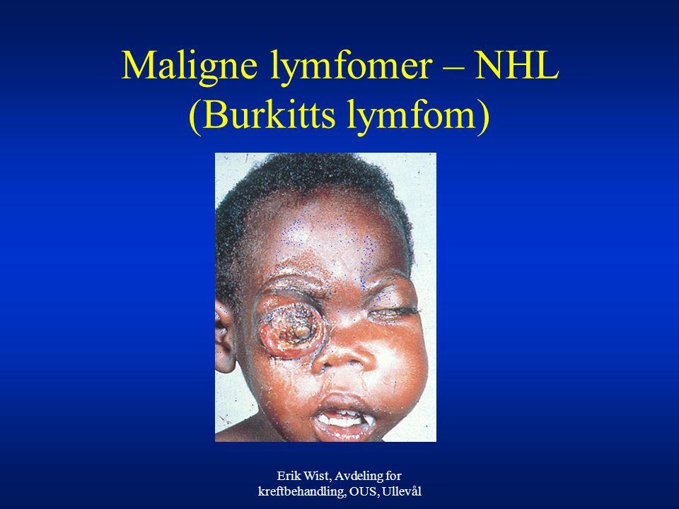 Erik Wist, Avdeling for kreftbehandling, OUS, Ullevål Maligne lymfomer – NHL (Burkitts lymfom)