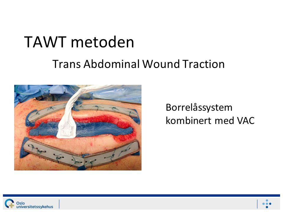 TAWT metoden Trans Abdominal Wound Traction Borrelåssystem kombinert med VAC