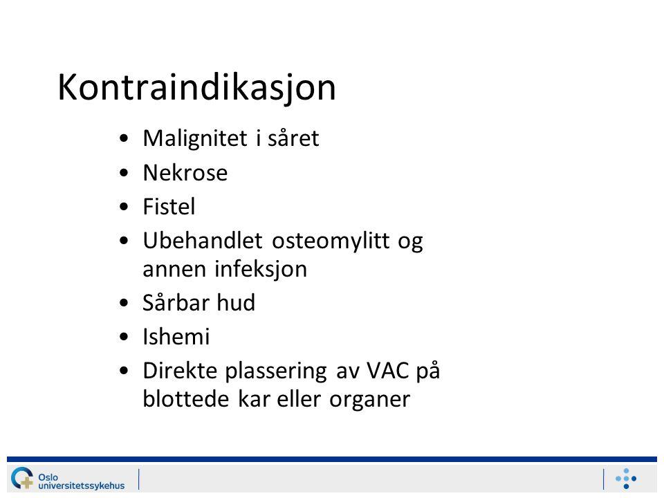 Kontraindikasjon Malignitet i såret Nekrose Fistel Ubehandlet osteomylitt og annen infeksjon Sårbar hud Ishemi Direkte plassering av VAC på blottede k