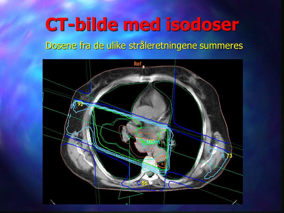 CT-bilde med isodoser Dosene fra de ulike stråleretningene summeres Ett av de scannede bildene