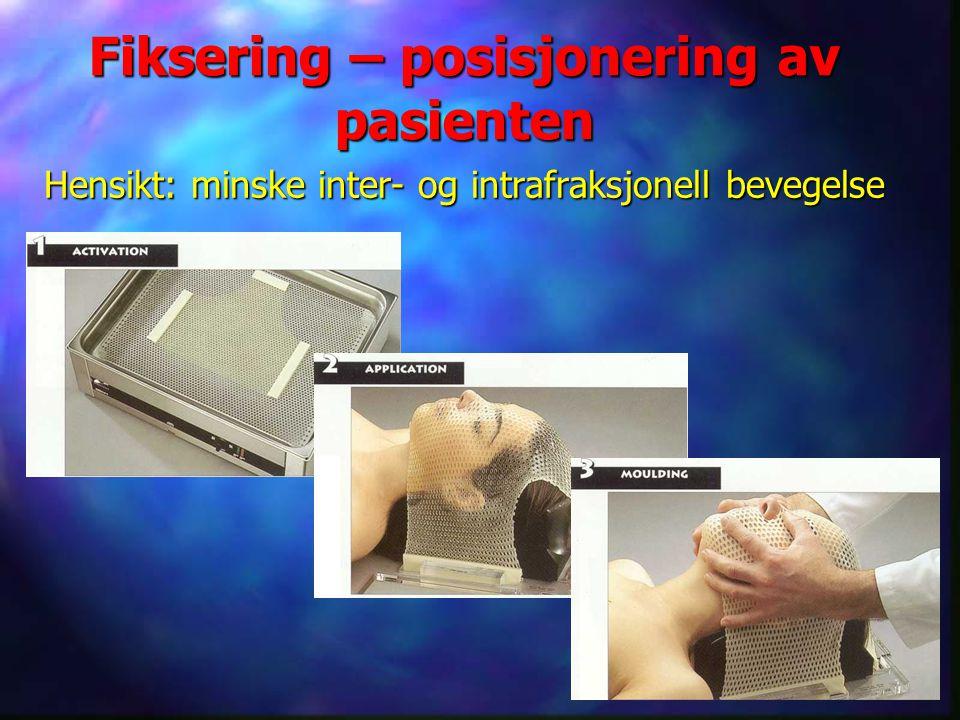 Fiksering – posisjonering av pasienten Hensikt: minske inter- og intrafraksjonell bevegelse