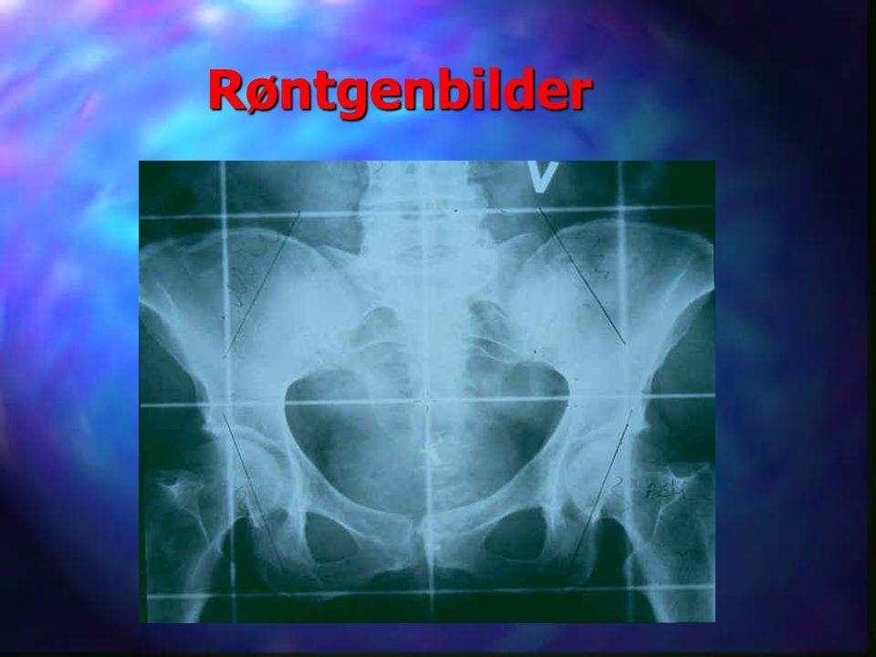 Røntgenbilder