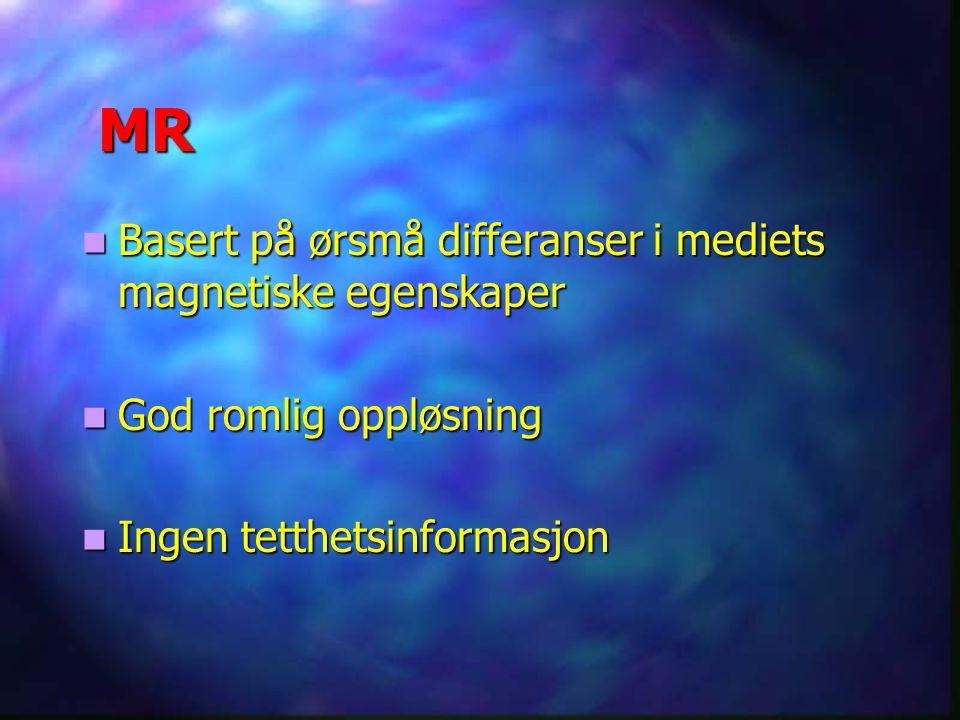 MR Basert på ørsmå differanser i mediets magnetiske egenskaper Basert på ørsmå differanser i mediets magnetiske egenskaper God romlig oppløsning God r