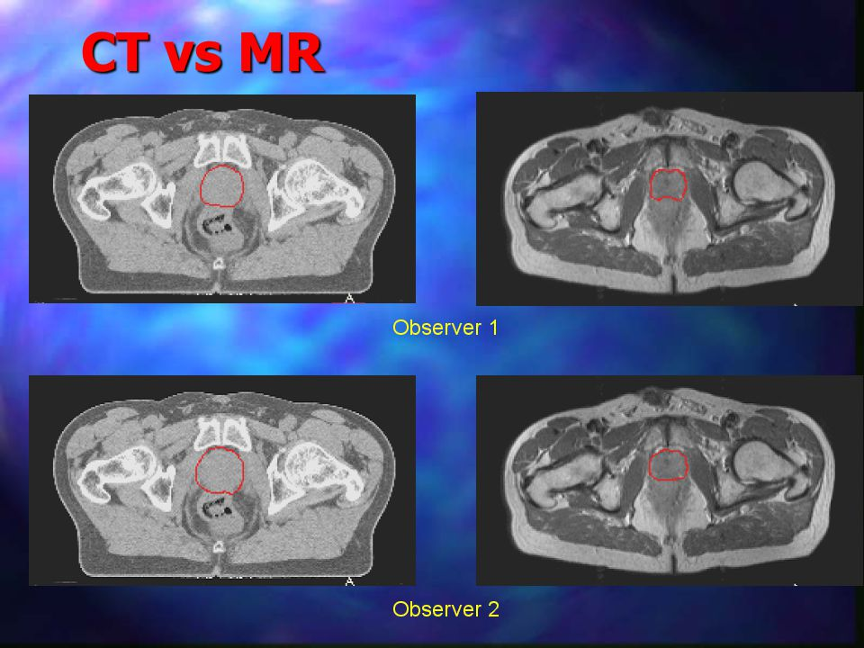 CT vs MR