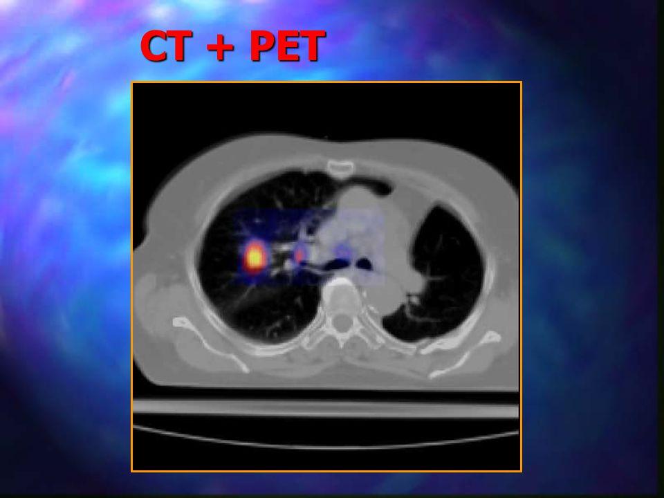 CT + PET