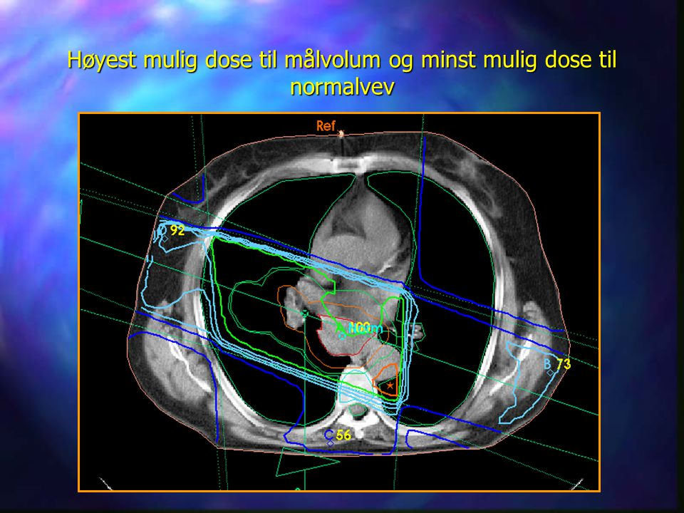 Ett av de scannede bildene Høyest mulig dose til målvolum og minst mulig dose til normalvev