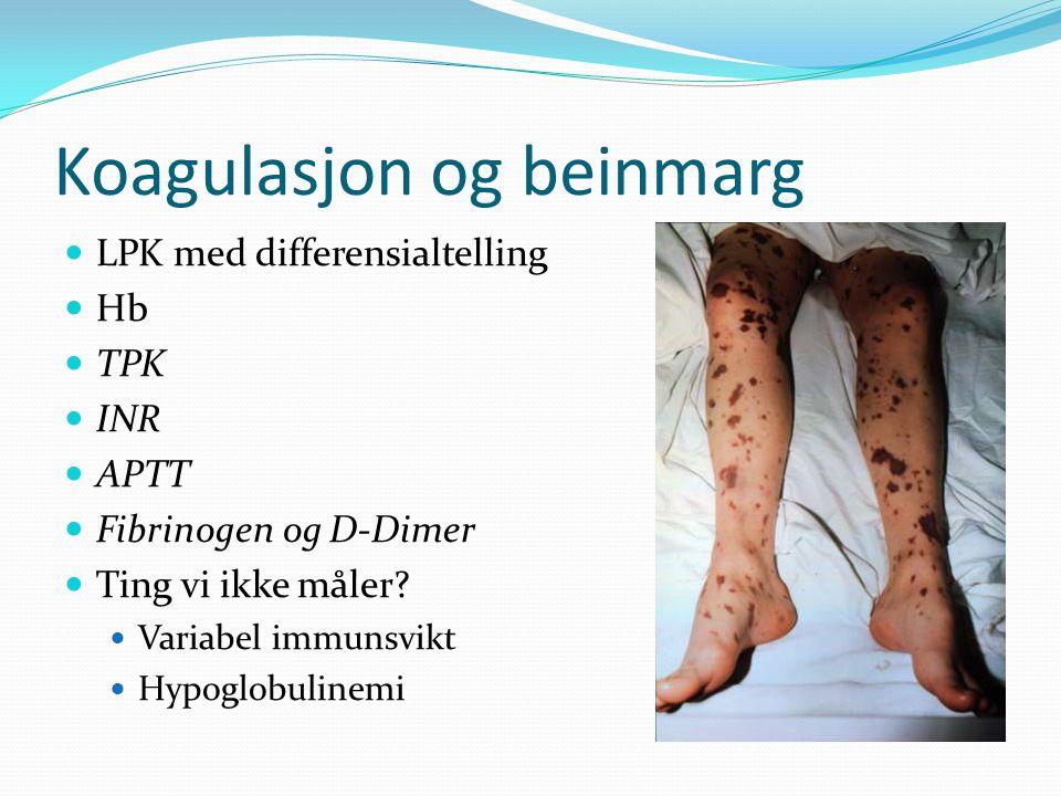 Koagulasjon og beinmarg LPK med differensialtelling Hb TPK INR APTT Fibrinogen og D-Dimer Ting vi ikke måler? Variabel immunsvikt Hypoglobulinemi