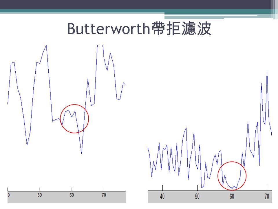 Butterworth 帶拒濾波