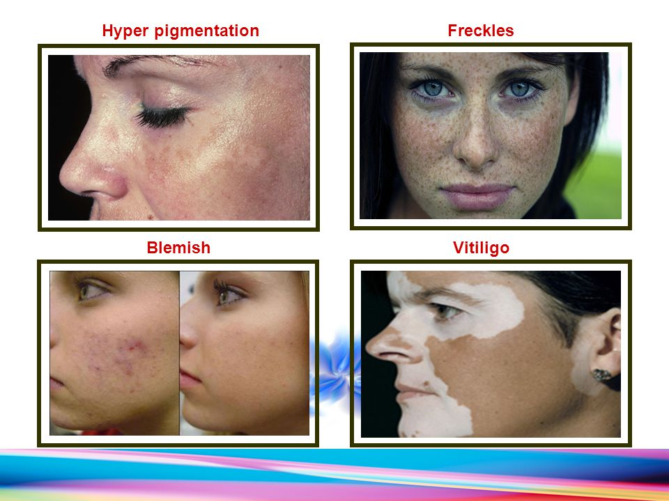 Vitiligo Blemish Hyper pigmentationFreckles