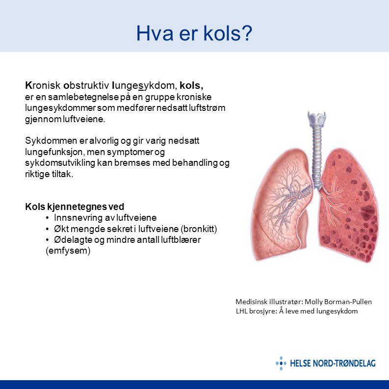 Hva er kols? Kronisk obstruktiv lungesykdom, kols, er en samlebetegnelse på en gruppe kroniske lungesykdommer som medfører nedsatt luftstrøm gjennom l