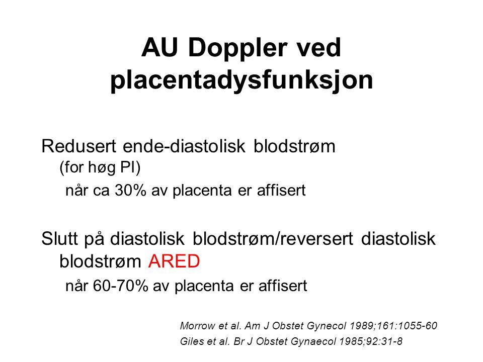 AU Doppler ved placentadysfunksjon Redusert ende-diastolisk blodstrøm (for høg PI) når ca 30% av placenta er affisert Slutt på diastolisk blodstrøm/re