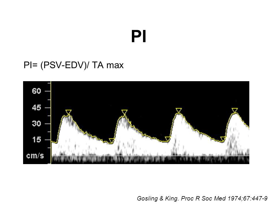PI PI= (PSV-EDV)/ TA max Gosling & King. Proc R Soc Med 1974;67:447-9