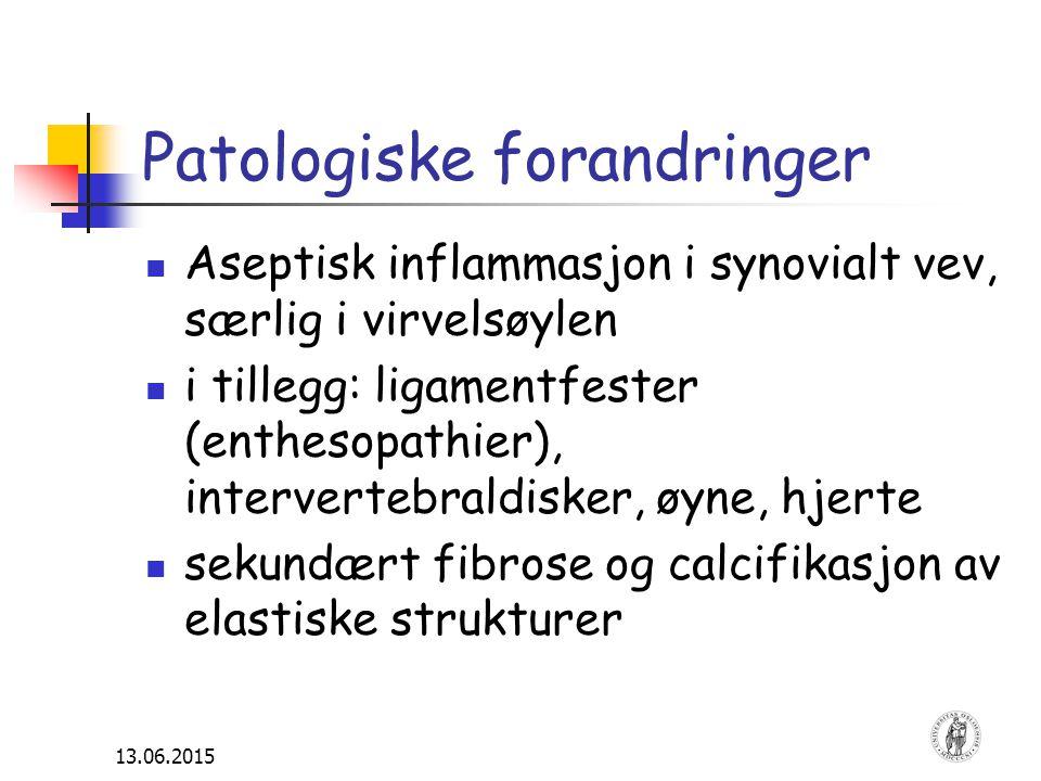 13.06.2015 Patologiske forandringer Aseptisk inflammasjon i synovialt vev, særlig i virvelsøylen i tillegg: ligamentfester (enthesopathier), intervert